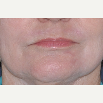 65-74 year old woman treated with Dermabrasion after 2749844