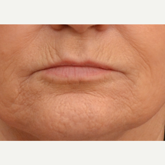 65-74 year old woman treated with Dermabrasion before 2749844