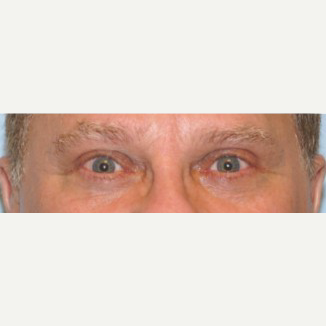 45-54 year old man treated with Ptosis Surgery after 3727876