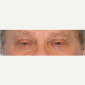 45-54 year old man treated with Ptosis Surgery before 3727876