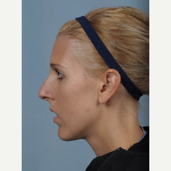 25-34 year old woman treated with Rhinoplasty before 3522211