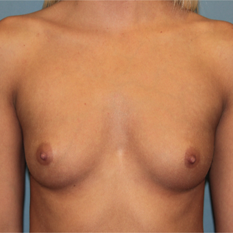 28 year old woman treated with Silicone Breast Implants before 3465208