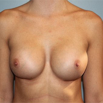 28 year old woman treated with Silicone Breast Implants after 3465208