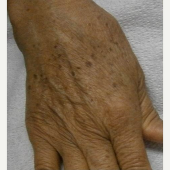 65-74 year old woman treated with IPL before 3120428