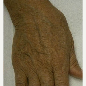 65-74 year old woman treated with IPL after 3120428