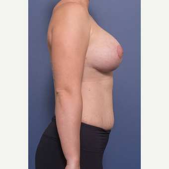 25-34 year old woman treated with Breast Lift with Implants after 3735151