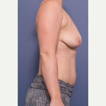 25-34 year old woman treated with Breast Lift with Implants before 3735151