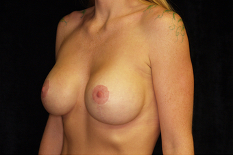 Breast Augmentation with mastoplexy after 630046