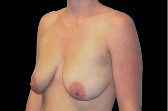 Breast Augmentation with mastoplexy before 630046