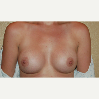 25-34 year old woman treated with Breast Augmentation after 3421441