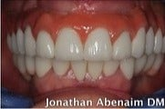 45-54 year old man treated with Dental Implants after 3241453