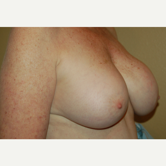 55-64 year old woman treated with Breast Implant Revision before 3049702