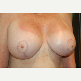 55-64 year old woman treated with Breast Implant Revision after 3049702