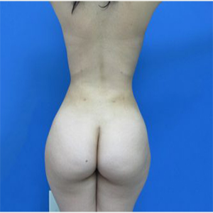 25-34 year old woman treated with Brazilian Butt Lift after 3749163