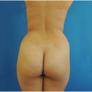 25-34 year old woman treated with Brazilian Butt Lift before 3749163