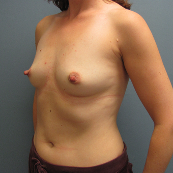 Ideal Breast Implants were used with this breast augmentation case before 3408156