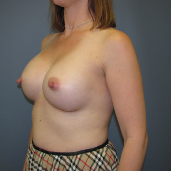 Ideal Breast Implants were used with this breast augmentation case after 3408156