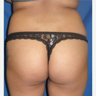 25-34 year old woman treated with Liposuction before 3071357