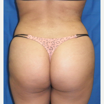 25-34 year old woman treated with Liposuction after 3071357