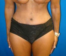 Breast Augmentation, Breast Enhancement, Mommy Makeover, Revision Breast Surgery, Saline Implants, Tummy Tuck after 1361170
