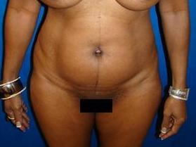 Breast Augmentation, Breast Enhancement, Mommy Makeover, Revision Breast Surgery, Saline Implants, Tummy Tuck before 1361170
