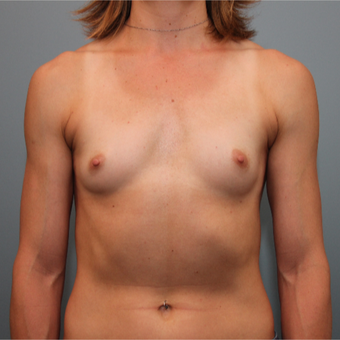 Silicone Breast Implants before 3390903