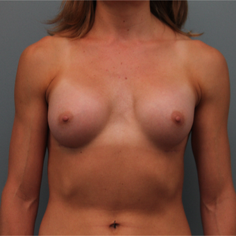Silicone Breast Implants after 3390903