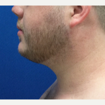 25-34 year old man treated with Chin Surgery after 3496377