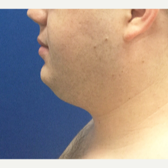 25-34 year old man treated with Chin Surgery before 3496377