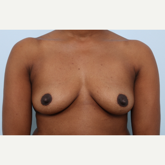 Breast Augmentation before 3460042