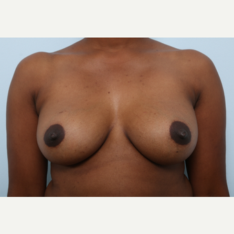 Breast Augmentation after 3460042