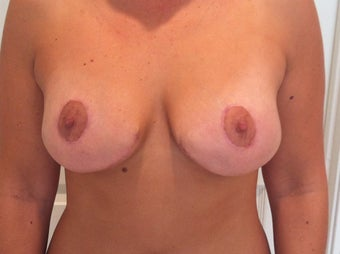 Ultimate Breast Lift with no implants after 562336