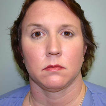 45 year old woman treated with Chin Liposuction before 3442391