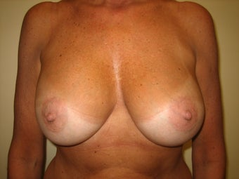 55 year old female before and after breast augmenation. after 1374226