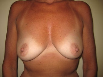 55 year old female before and after breast augmenation. before 1374226