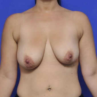 Augmentation Mastopexy before 3814639