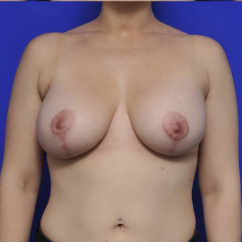 Augmentation Mastopexy after 3814639