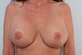 Breast Implant Revision after 2966356