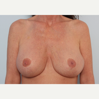 Breast Implant Revision before 2966356