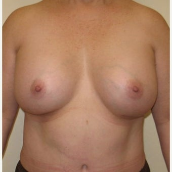55-64 year old woman treated with Breast Implant Revision