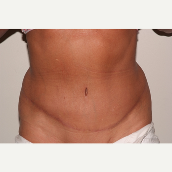 Tummy Tuck after 3109536