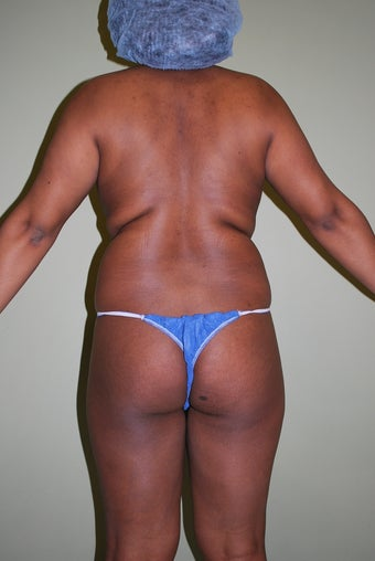 Brazilian butt lift case 705296