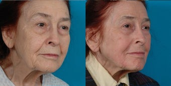 82-year-old woman treated with Juvéderm. after 3287689