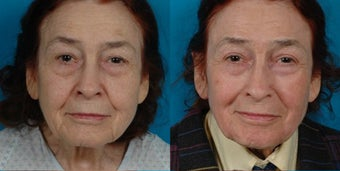 82-year-old woman treated with Juvéderm. before 3287689