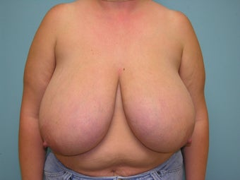 Breast Reduction before 172513