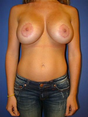 Breast Augmentation with Benelli Breast Lift Surgery after 121728