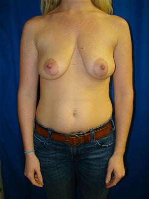 Breast Augmentation with Benelli Breast Lift Surgery before 121728