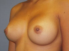 Breast Augmentation after 391959