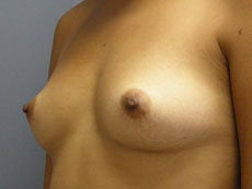 Breast Augmentation before 391959