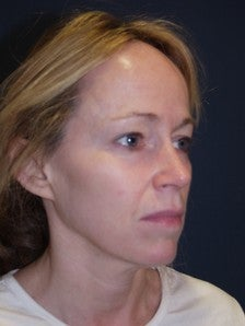 45 Year Old Female with Eyelid Surgery, Facial Implants and Signature Lift